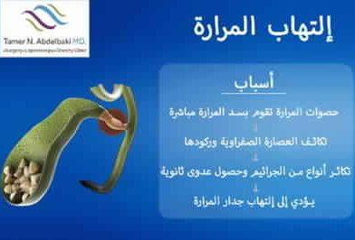 إلتهاب المرارة من دكتور تامر عبد الباقي