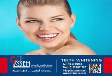 كل ما تريد معرفته عن تبييض الأسنان من دكتور عاصم حسام الدين