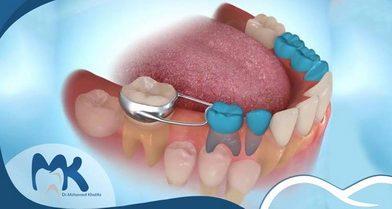 علاج إهمال الأسنان في فترة الطفولة مع الدكتور محمد خليفة