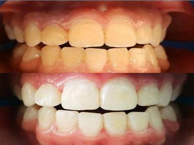 كيفية الحصول على ابتسامة بيضاء في أقل من ساعة مع مركز فاميلي لطب وعلاج الأسنان
