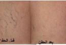 حقن الدوالي السطحية من دكتور أيمن الشبكي